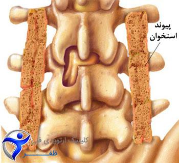 نقش پیوند استخوان در جراحی پروتز ستون فقرات
