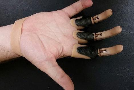 انگشت M و انگشتان M ناقص