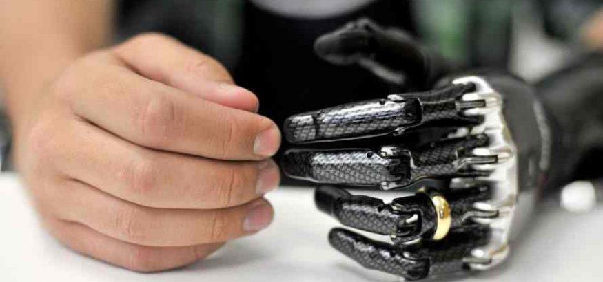 دست مصنوعی مکانیکی نحوه عملکرد سنسورهای پروتز دست مکانیکی-compressed