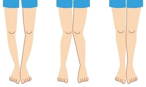 علت پرانتزی شدن پا چیست؟