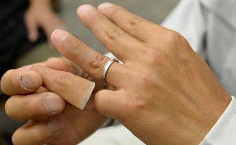 مراقبت از انگشت مصنوعی سیلیکونی شامل چه نکاتی است؟