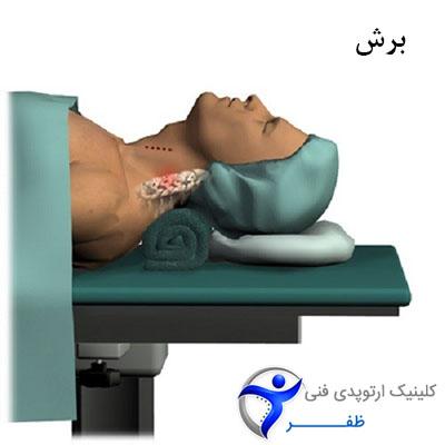 مرحله اول جراحی دیسک گردن