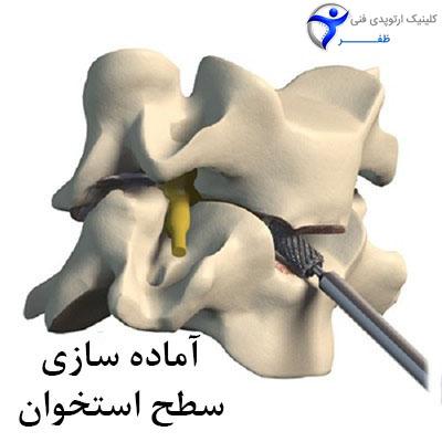 مرحله سوم جراحی