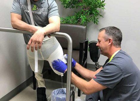 نصب پروتز در افرادیی که هر دو پای آنها از بالای زانو دچار قطع عضو شدهاند