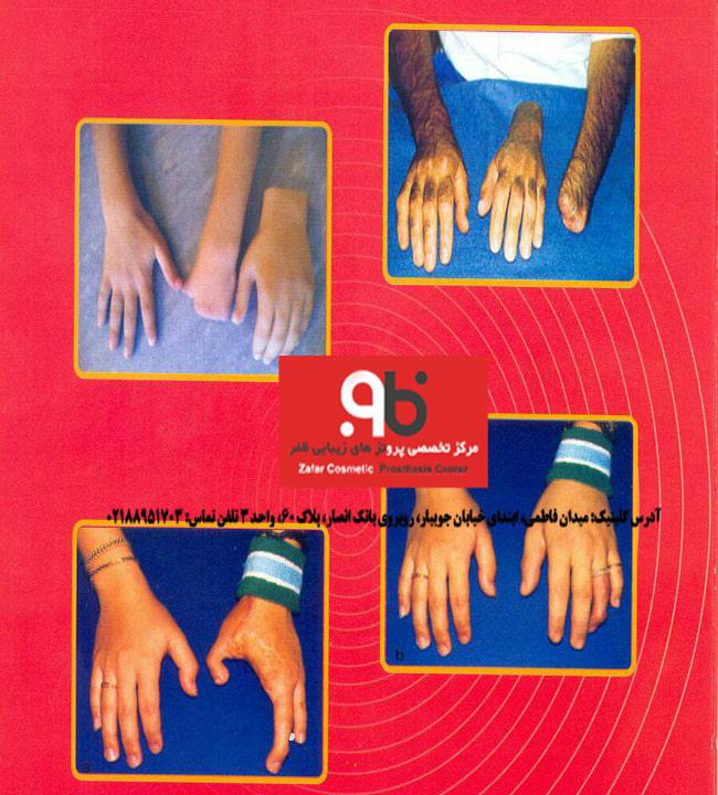 پروتز های دست