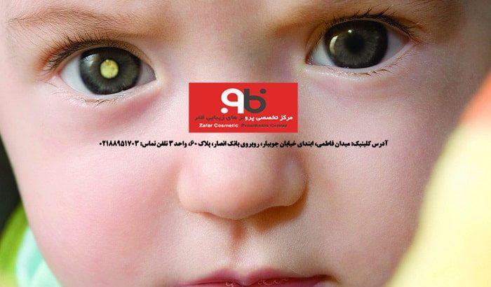 چشم مصنوعی برای کودکان