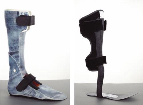 کاربرد ارتزهای پا