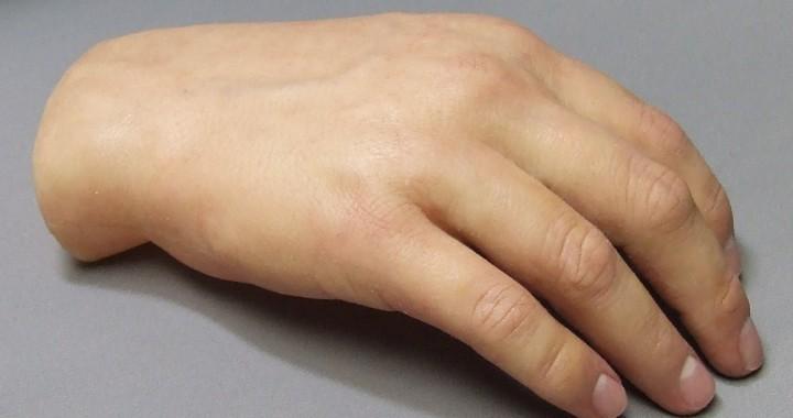 پروتز زیبایی دست و پروتز زیبایی انگشت